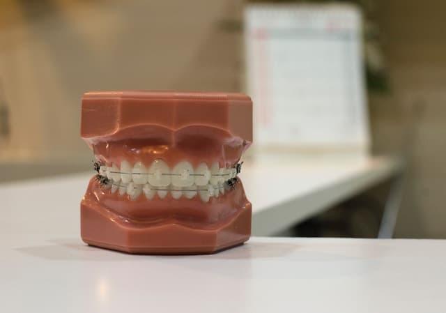 Leistungen Zahnzusatzversicherung